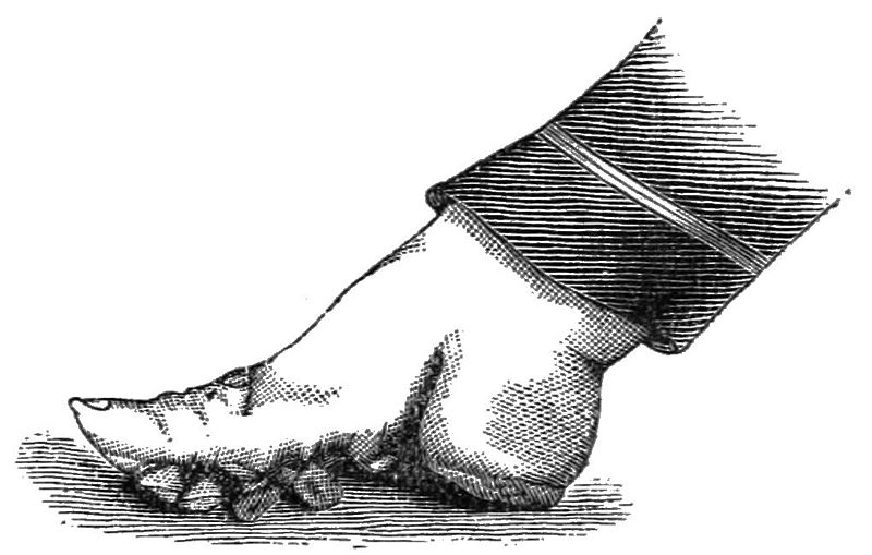 File:PSM V24 D665 Distorted foot of a chinese woman.jpg