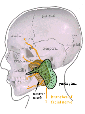 Parotidectomy - This image shows the general anatomy of the parotid gland and its associated structures.