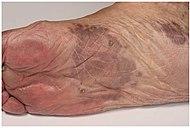 Patch stage Kaposi's sarcoma.jpg