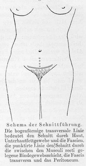 Pfannenstiel incision - First description of Pfannenstiel's incision.