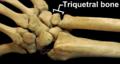 RightHumanPosteriorDistalRadiusUlnaCarpals - Triquetral bone.png