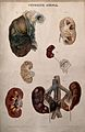 Several examples of diseased kidneys, numbered for key. Colo Wellcome V0009818EL.jpg
