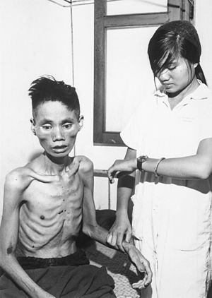 Viet Cong - This 23-year-old man, who had defected from the Communist forces and joined the South Vietnam Government side, was recaptured by the Việt Cộng and spent a month in a Việt Cộng internment camp, 1966.