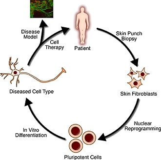 Tissue engineering - Image: The steps of regenerative medicine