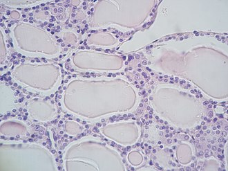 Parafollicular cell - Histology section of the thyroid showing follicles, where parafollicular cells reside