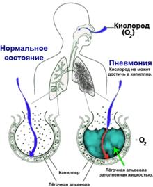 можно ли заразиться пневмонией от больного