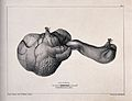 A diseased part of the body. Lithograph by W. Walton after F Wellcome V0009865.jpg