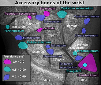 Accessory bone - X-ray of the  wrist, with most common accessory bones labeled.