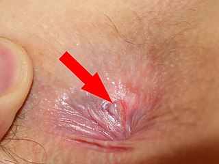 Close up anal pictures