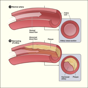 Artery - Diagram showing the effects of atherosclerosis on an artery.