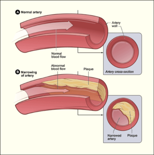 type of cardiomyopathy caused by a narrowing of the coronary arteries which supply blood to the heart