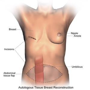Breast reconstruction - Transverse Rectus Abdominis Myocutaneous flap (TRAM).