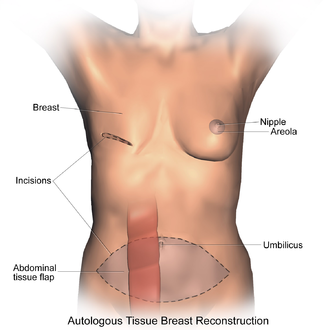 Breast reconstruction - Transverse Rectus Abdominis Myocutaneous flap (TRAM).