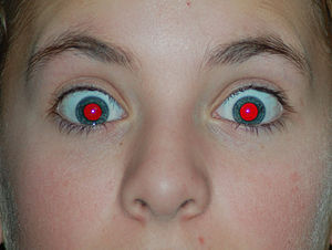 Red-eye effect - Intense red-eye effect in blue eyes with dilated pupil