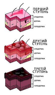 Картинки по запросу опіки глибина