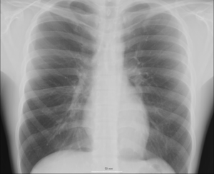 An X-ray of a human chest.