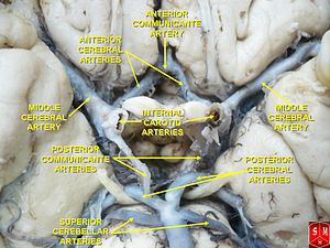 Middle cerebral artery - Middle cerebral artery
