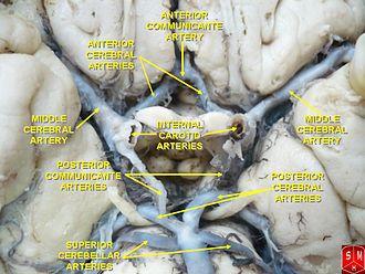 Middle cerebral artery - Middle cerebral artery
