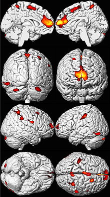 Eight MRI views of a brain in black and white, with yellow, orange, and red areas overlaid in spots mainly toward the front.