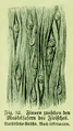 Die Frau als Hausärztin (1911) 032 Finnen zwischen den Muskelfasern des Fleisches.png