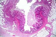 Diverticulitis - Wikipedia