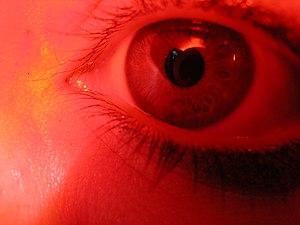 Eye (red)