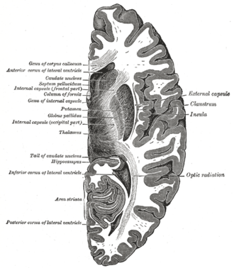 Right hemisphere brain damage - Horizontal section of right cerebral hemisphere