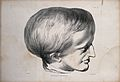 Head of James Cardinal; a man with a deformed skull. Lithogr Wellcome V0009796.jpg
