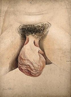 Hypertrophy of clitoris, 1857.jpg