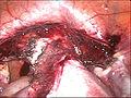 Hysterectomy2.jpg