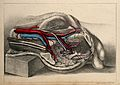 Iliac arteries; dissection of the abdomen of a male. Coloure Wellcome V0008160.jpg