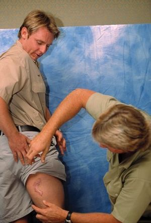 Wes Mannion - Irwin showing Mannions's scars from a crocodile attack.