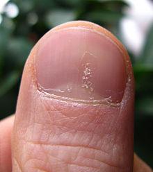 psoriasis bumps on scalp