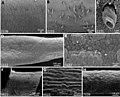 Nematomorpha (10.3897-zse.92.10351) Figure 16.jpg