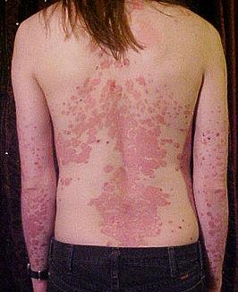 Jongeman met plaque psoriasis op rug en armen