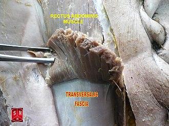 Transversalis fascia - Image: Rectus abdominis muscle 2