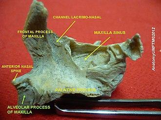 Alveolar process - Image: Slide 13hhhh