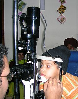 Slit lamp examination of eyes in an Ophthalmology Clinic