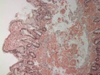 Small bowel duodenum with amyloid deposition congo red 10X.jpg