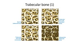 Spongy bone - Trabecular bone - Normal trabecular bone Trabecular bone etc -- Smart-Servier.jpg