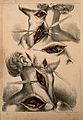 Surgery of carotid and subclavian arteries; two figures show Wellcome V0008156.jpg