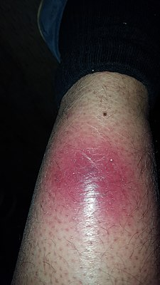 pictures of early necrotizing fasciitis - HD1836×3264