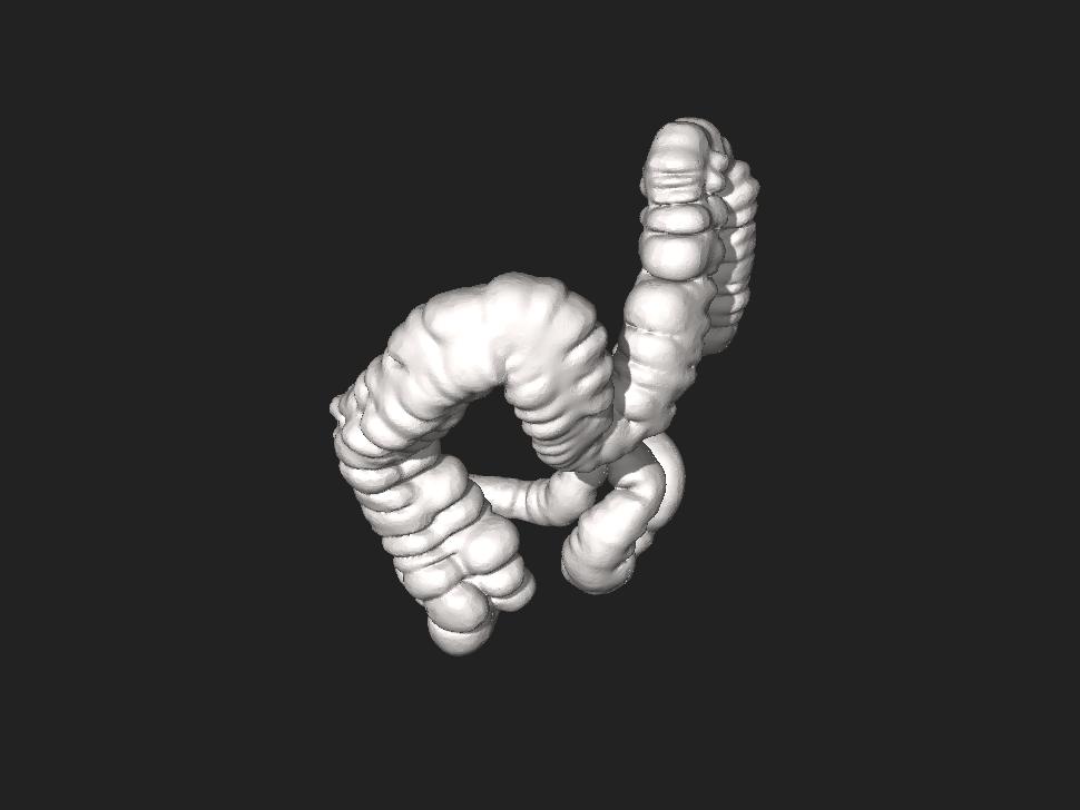 3DPX-002736 Large intestine Nevit Dilmen.stl