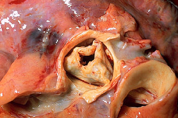 Gross pathology of rheumatic heart disease: ao...