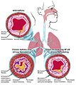 Asthma- Mild and Chronic (5081431722).jpg
