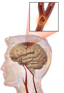 Hemorragia cerebral de coumadin