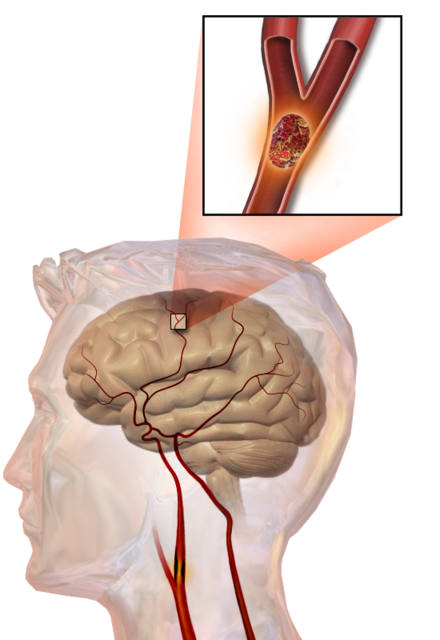 Illustration of an embolic stroke, showing a blockage lodged in a blood vessel. Blausen 0836 Stroke.png
