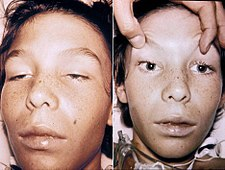 Vlevo: ptóza víček, vpravo: mydriáza. Nález 4 dny po infekci Clostridium botulinum.