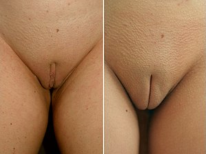 Clitoral hood reduction in adult caucasian female.jpg