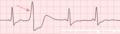 De-Rhythm ventricular premature (CardioNetworks ECGpedia).png